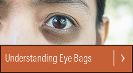 cure your allergies fix puffy baggy eyes