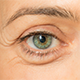 5 Ways To Fix Puffy Baggy Eyes